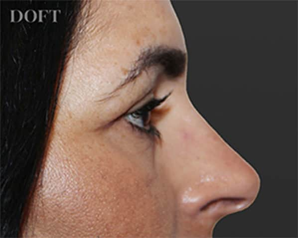 Eyelid Surgery After