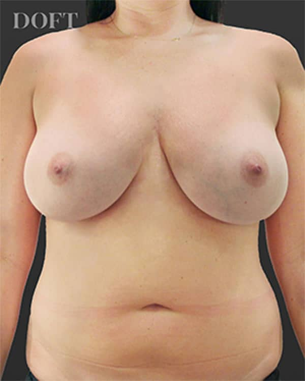 Breast Reduction Before 2