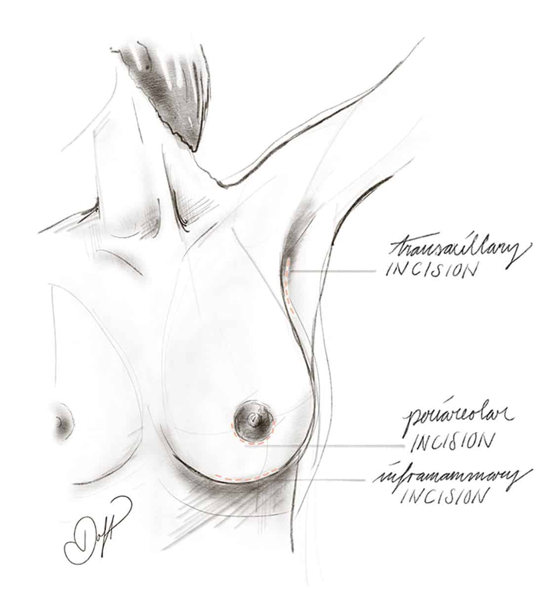 Breast Implant Incision Location