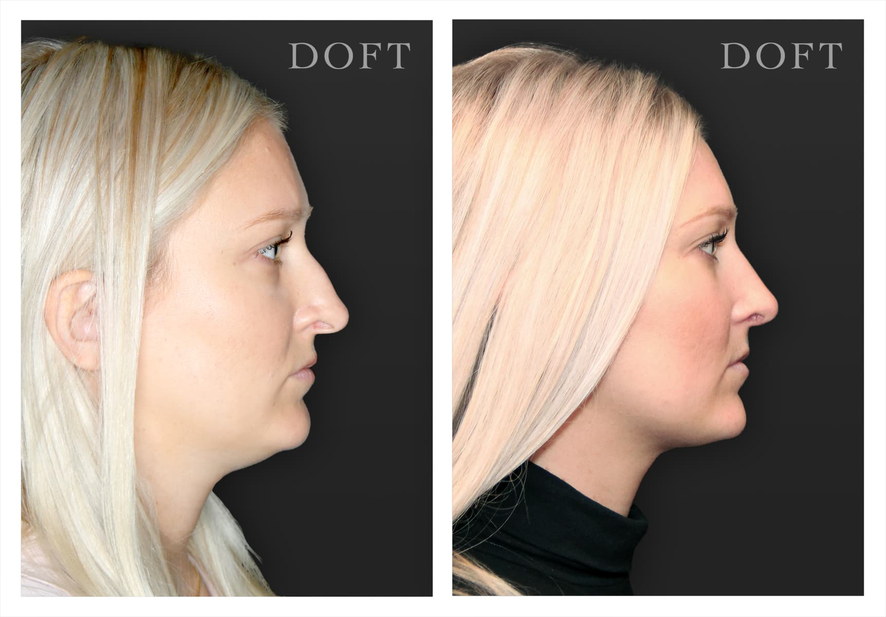 Nose Job (Rhinoplasty) • Doft Plastic Surgery